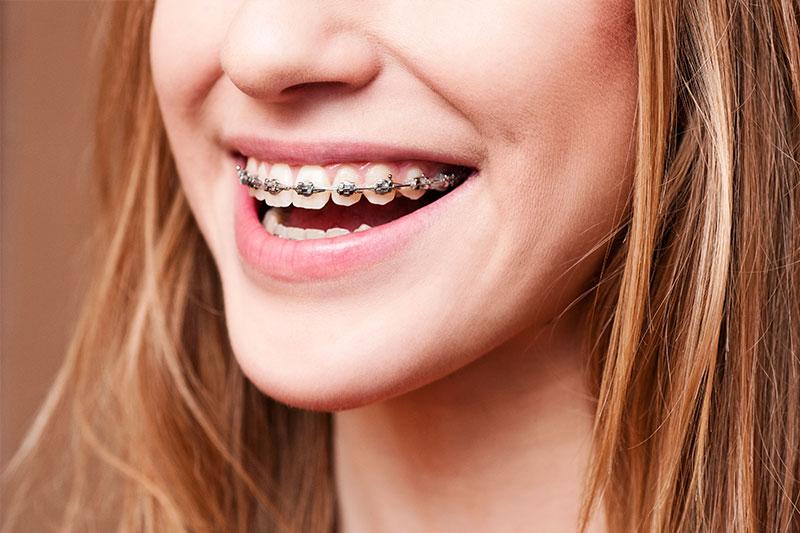 Orthodontics in Burke