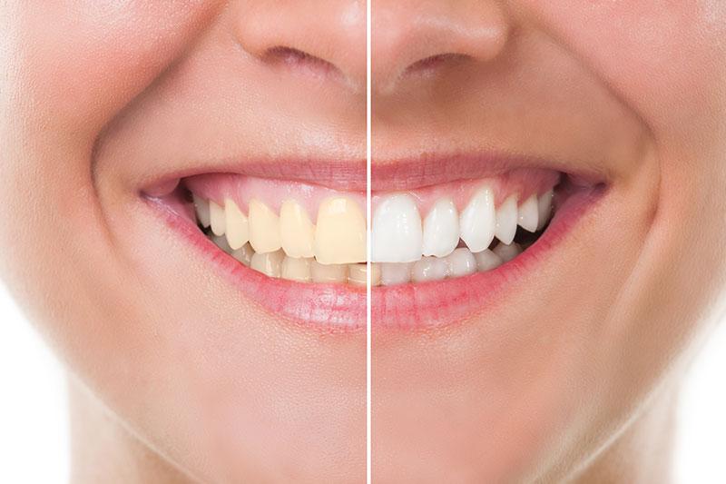 Teeth Whitening in Burke